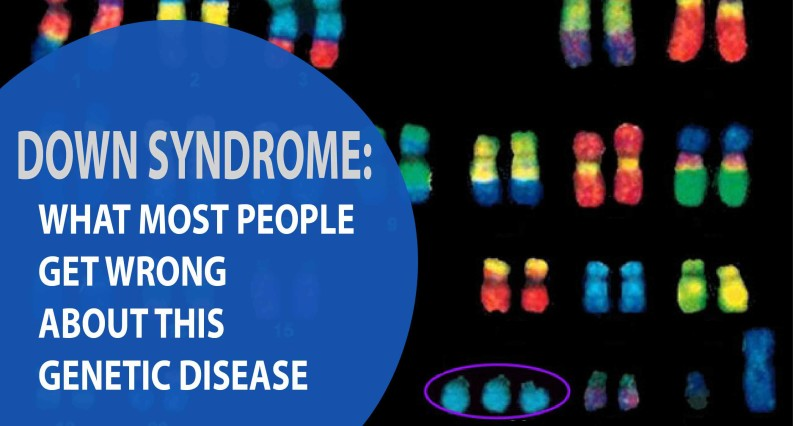 down syndrome what most people get wrong about this genetic disease brain and body chiropractic