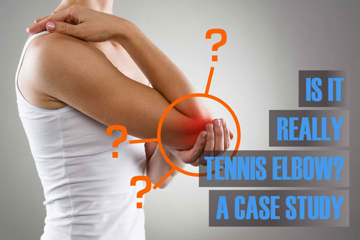 case study chronic elbow pain and nerve entrapment chiropractor in holland