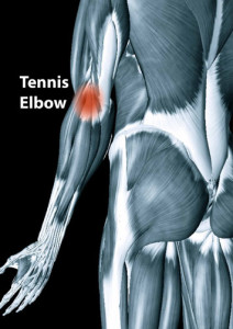 case study chronic elbow pain and nerve entrapment chiropractor in holland 2