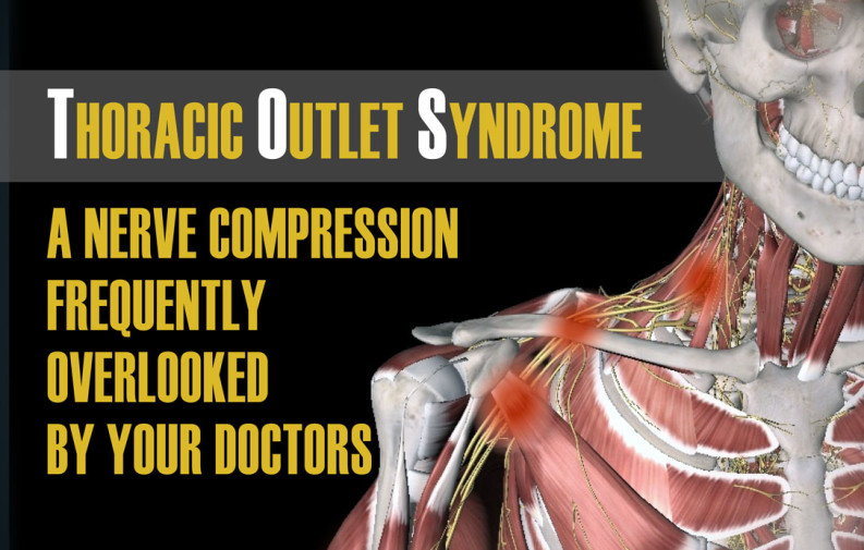 thoracic outlet syndrome a nerve compression frequently overlooked by your doctors