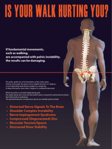 running injuries gait analysis poster chiropractor in holland